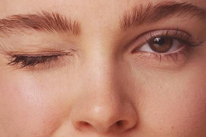 Saiba como tratar e prevenir as olheiras! E os novos tratamentos